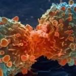 A rák nem az újkor szörnyszüleménye!
